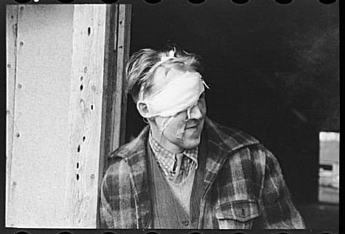 Russell Lee 1937 Lumberjack with bandaged head after being beaten up and rolled in a saloon on Saturday night in Craigsville, Minnesota.