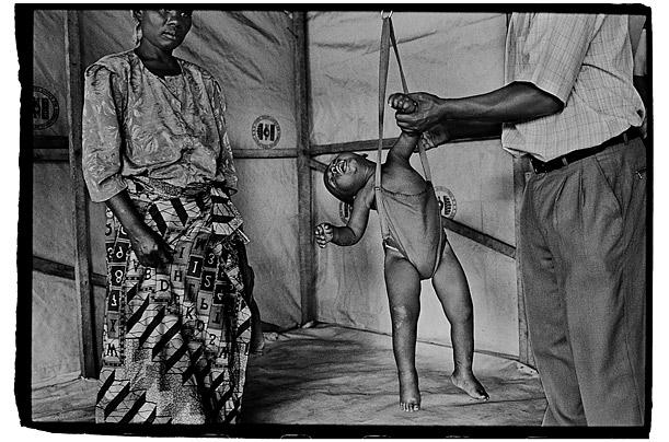 Nachtwey A child's weight is monitored Congo