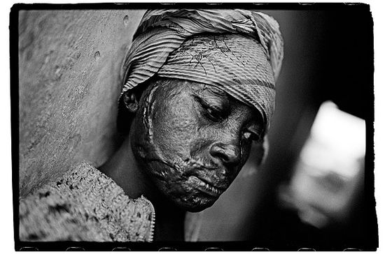 Nachtwey A young woman who was raped and burned by Congolese troops