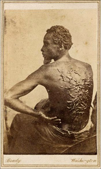 Mathew Brady Studio Gordon Slave copy